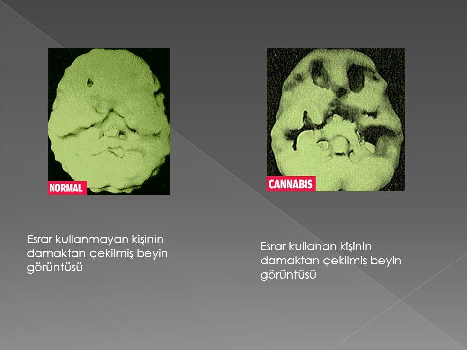 Esrar kullanmayan kişinin damaktan çekilmiş beyin görüntüsü