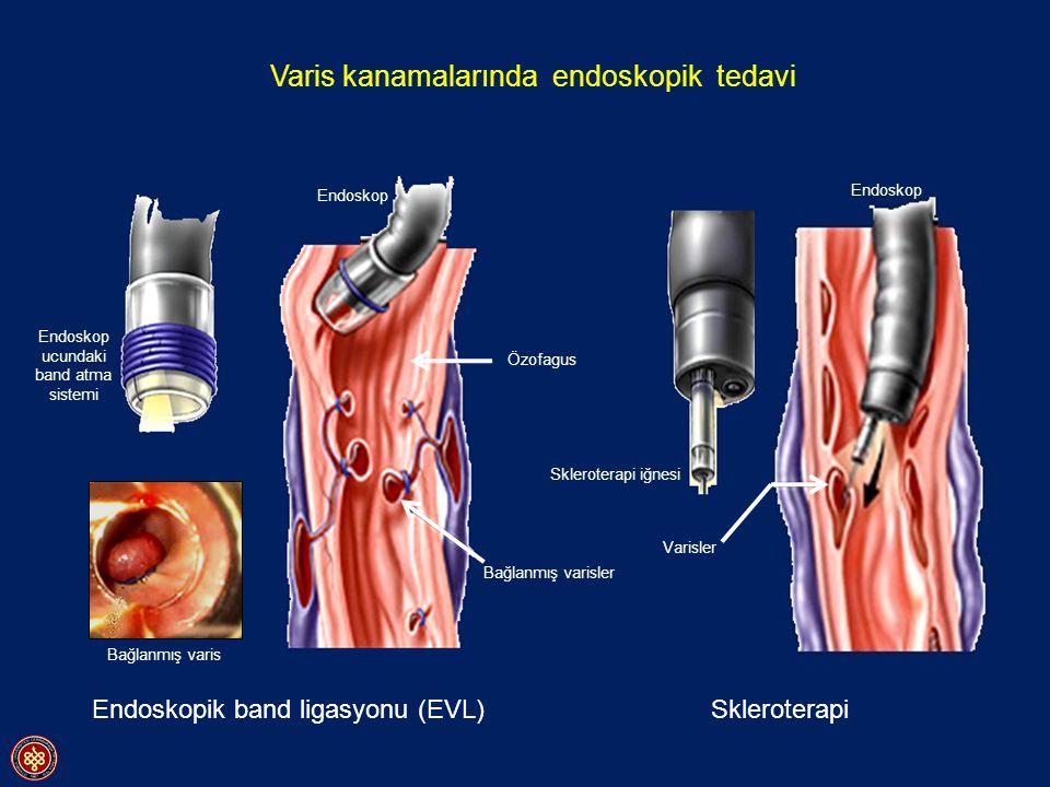 Endoskop ucundaki band atma sistemi