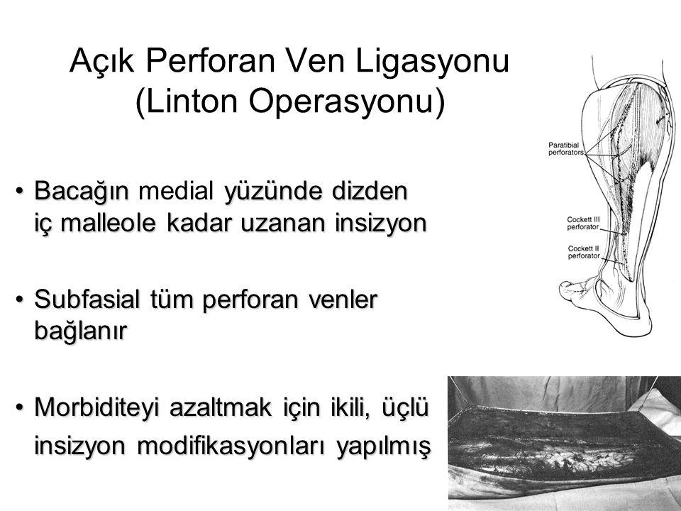 Açık Perforan Ven Ligasyonu (Linton Operasyonu)