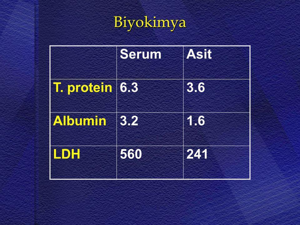 Biyokimya Serum Asit T. protein 6.3 3.6 Albumin 3.2 1.6 LDH 560 241