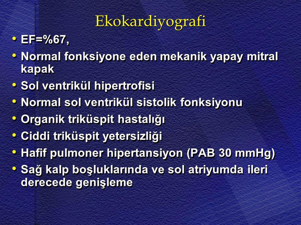 Ekokardiyografi EF=%67, Normal fonksiyone eden mekanik yapay mitral kapak. Sol ventrikül hipertrofisi.