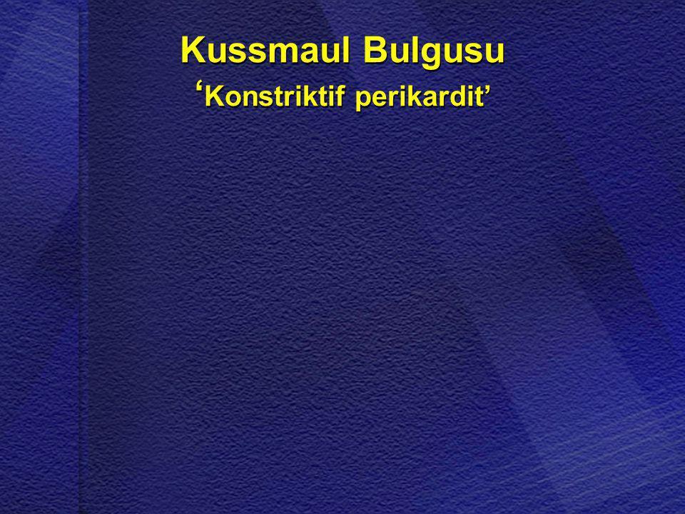 Kussmaul Bulgusu 'Konstriktif perikardit'