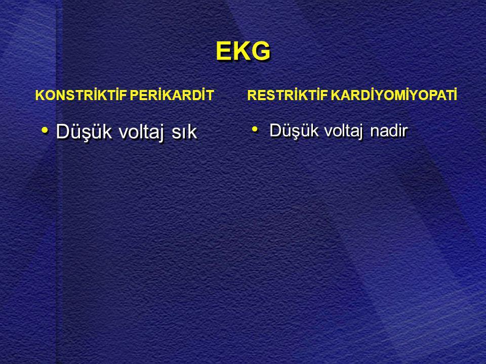 RESTRİKTİF KARDİYOMİYOPATİ
