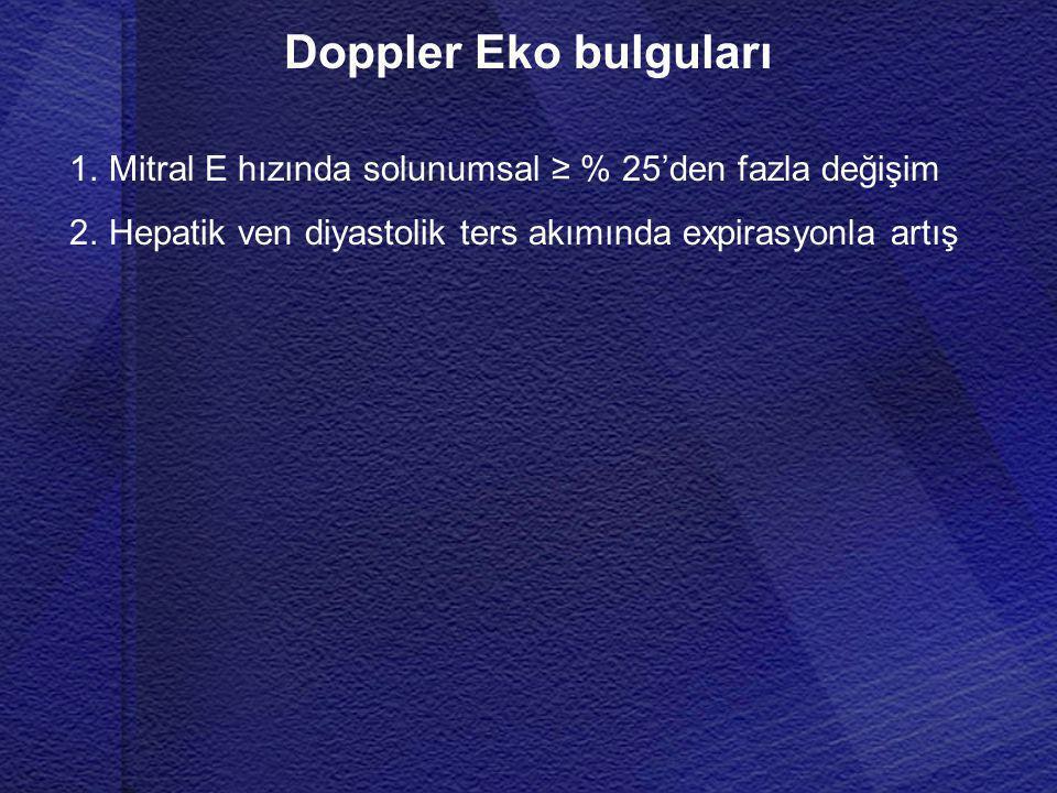 Doppler Eko bulguları Mitral E hızında solunumsal ≥ % 25'den fazla değişim.