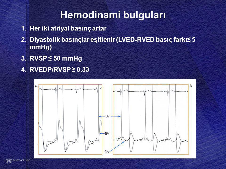 Hemodinami bulguları Her iki atriyal basınç artar