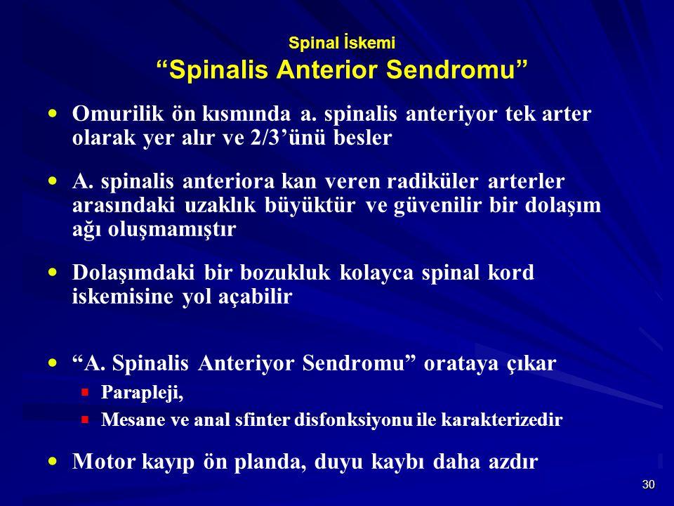 Spinal İskemi Spinalis Anterior Sendromu