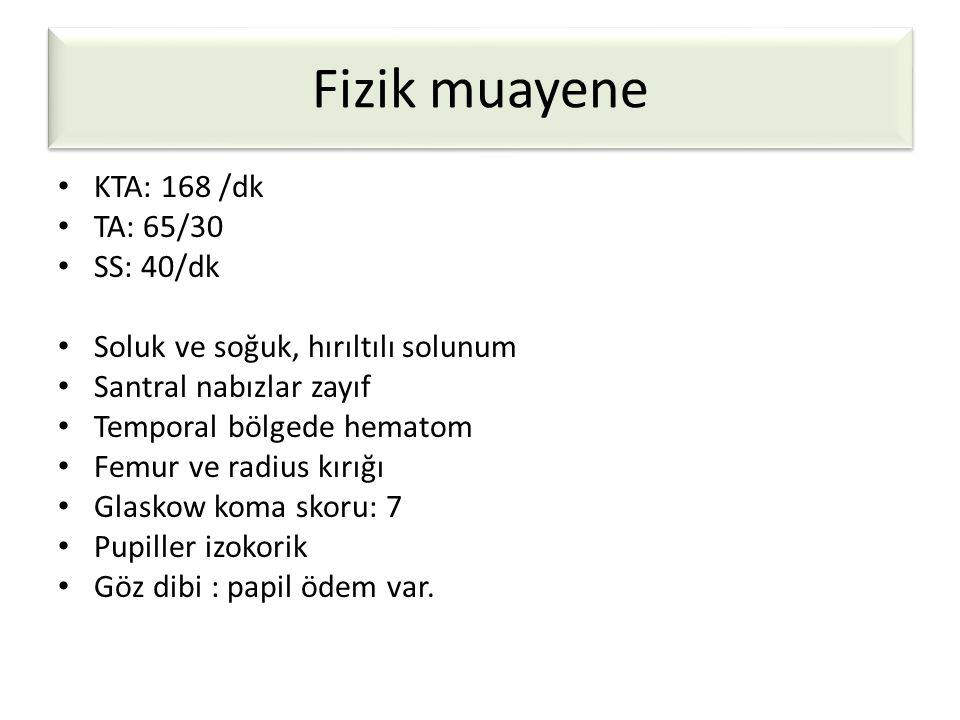 Fizik muayene KTA: 168 /dk TA: 65/30 SS: 40/dk