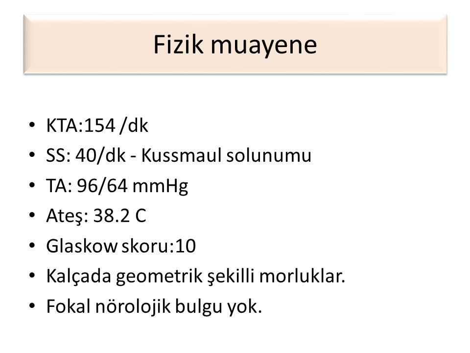 Fizik muayene KTA:154 /dk SS: 40/dk - Kussmaul solunumu TA: 96/64 mmHg
