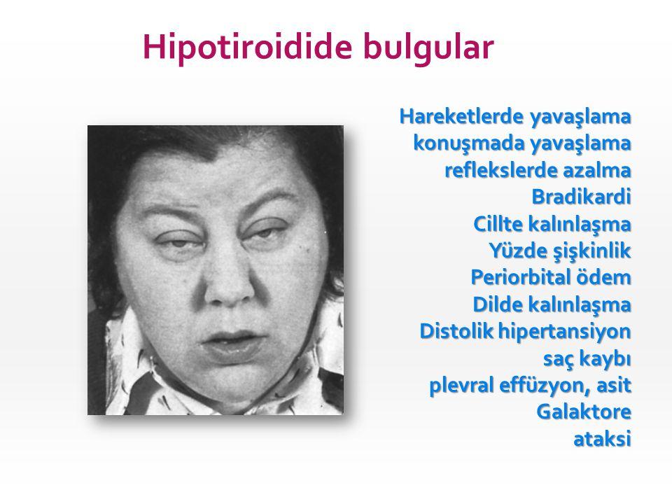 Hipotiroidide bulgular