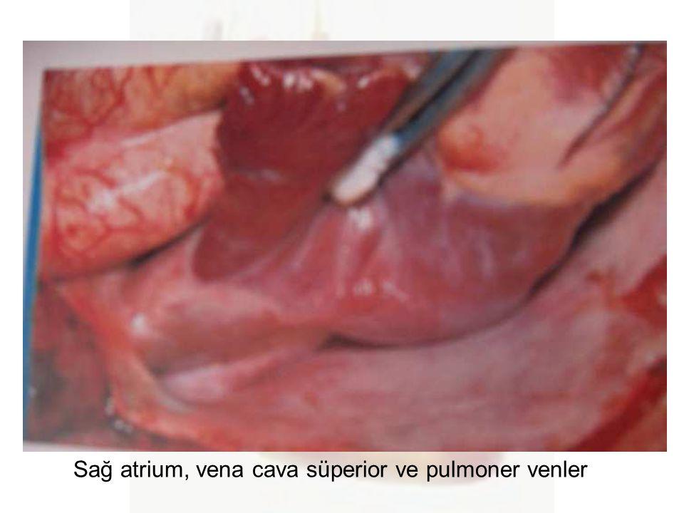 Sağ atrium, vena cava süperior ve pulmoner venler