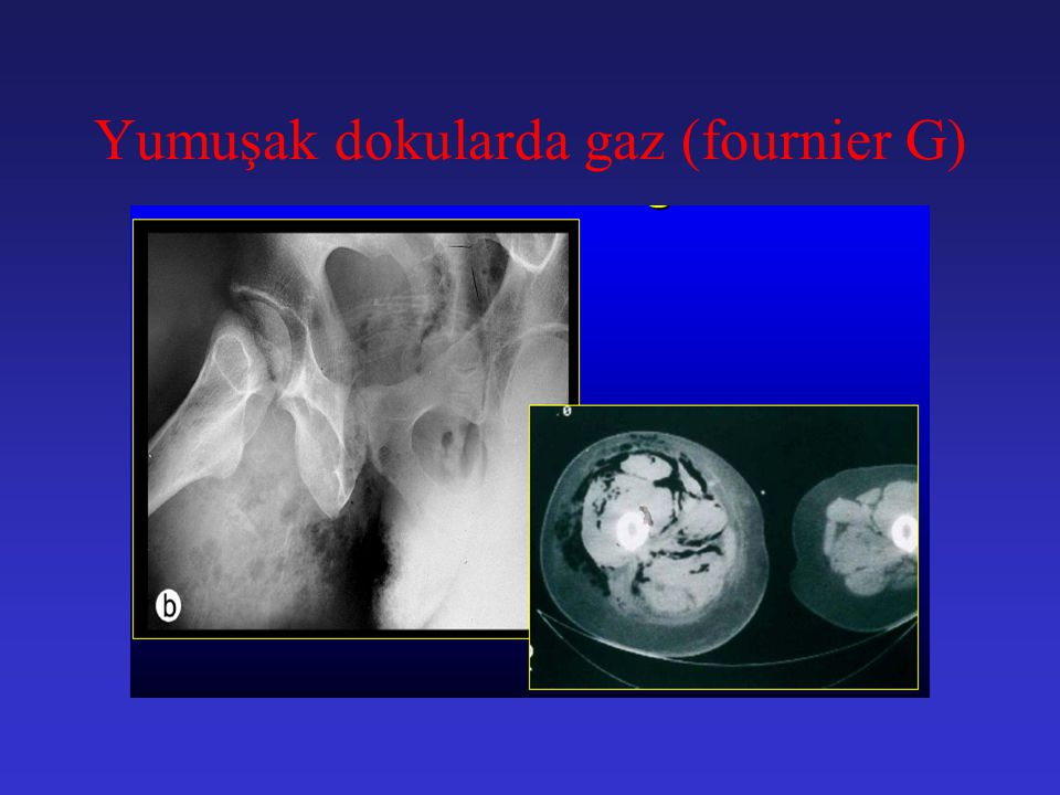 Yumuşak dokularda gaz (fournier G)