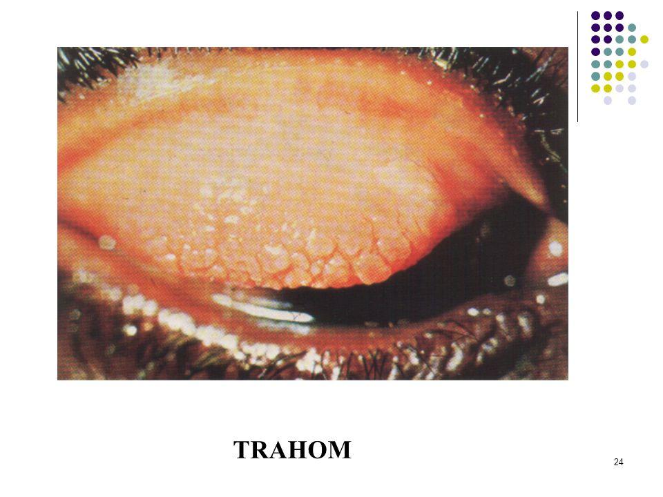 TRAHOM