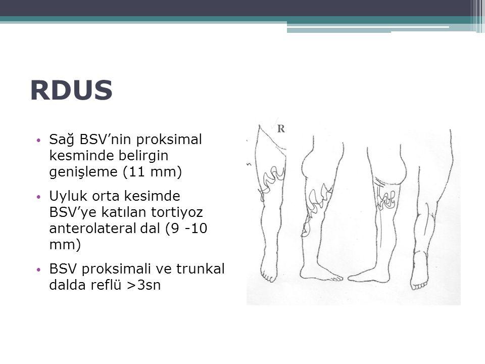 RDUS Sağ BSV'nin proksimal kesminde belirgin genişleme (11 mm)