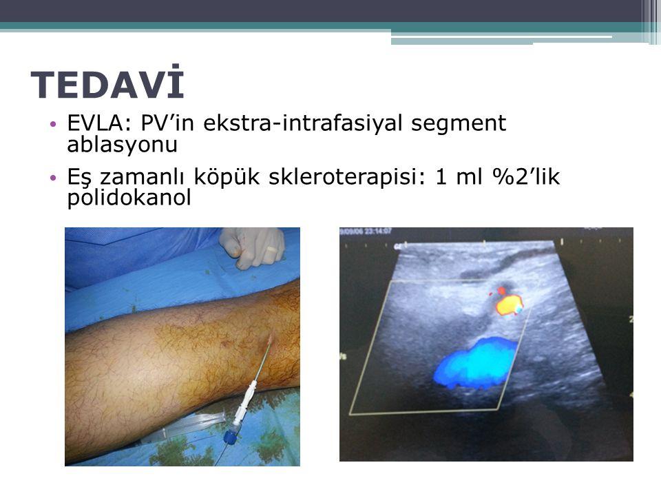 TEDAVİ EVLA: PV'in ekstra-intrafasiyal segment ablasyonu