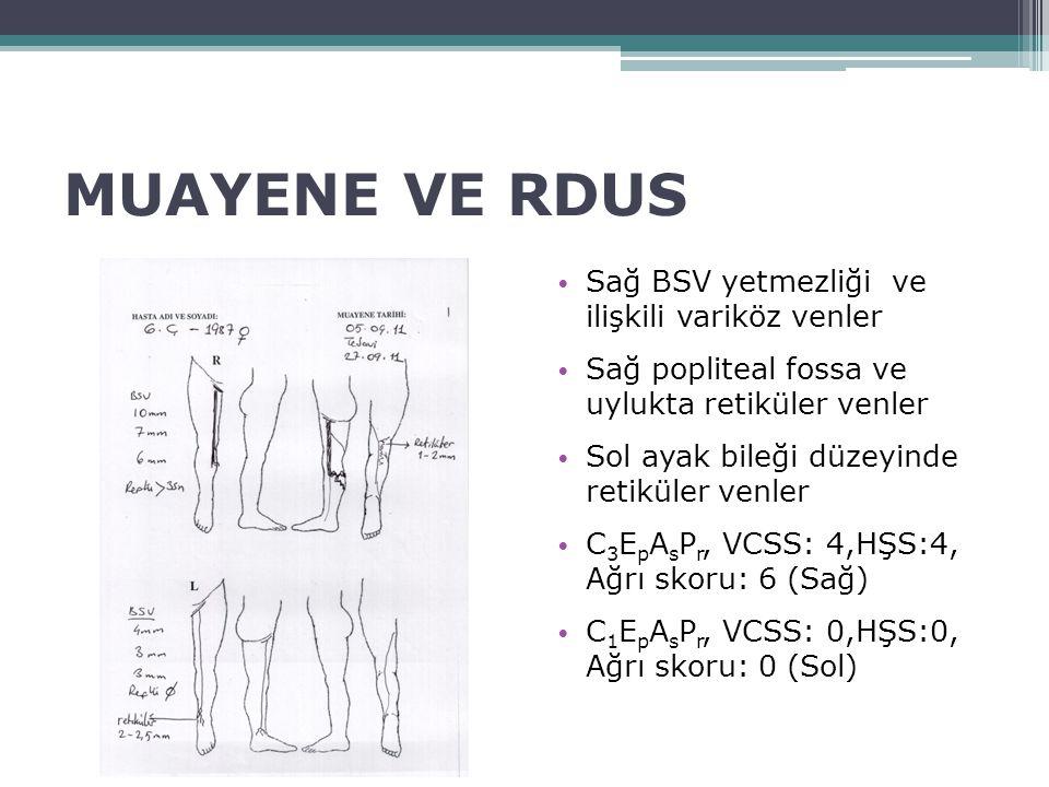 MUAYENE VE RDUS Sağ BSV yetmezliği ve ilişkili variköz venler