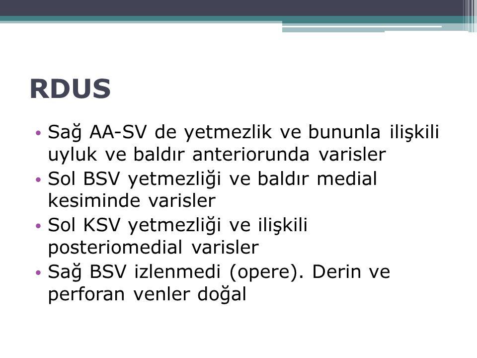 RDUS Sağ AA-SV de yetmezlik ve bununla ilişkili uyluk ve baldır anteriorunda varisler. Sol BSV yetmezliği ve baldır medial kesiminde varisler.
