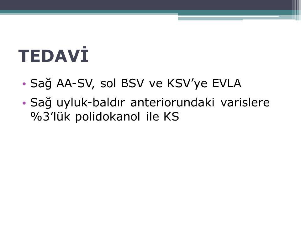 TEDAVİ Sağ AA-SV, sol BSV ve KSV'ye EVLA