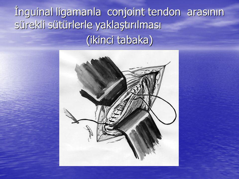 İnguinal ligamanla conjoint tendon arasının sürekli sütürlerle yaklaştırılması (ikinci tabaka)