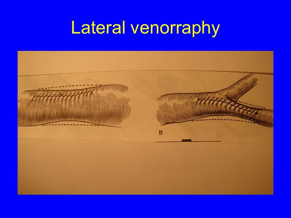 Lateral venorraphy