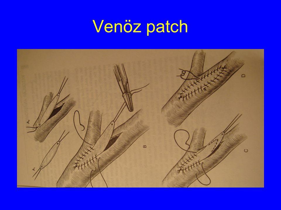 Venöz patch