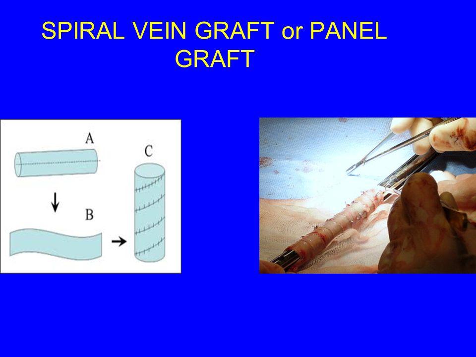 SPIRAL VEIN GRAFT or PANEL GRAFT