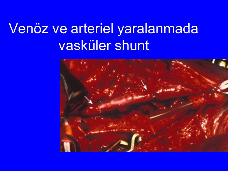 Venöz ve arteriel yaralanmada vasküler shunt