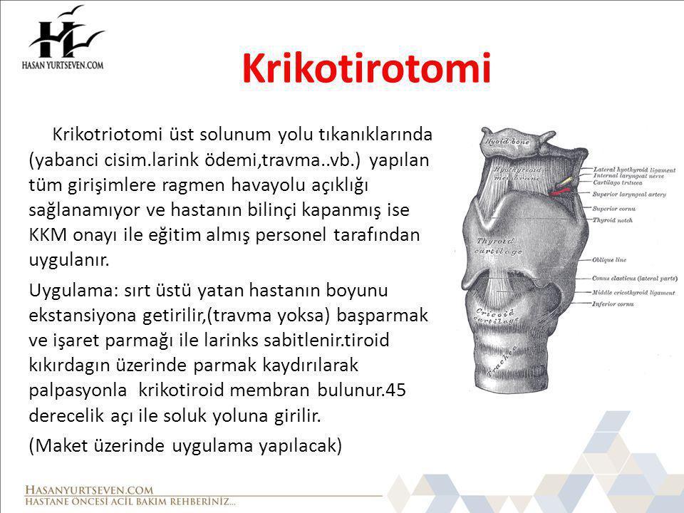 Krikotirotomi
