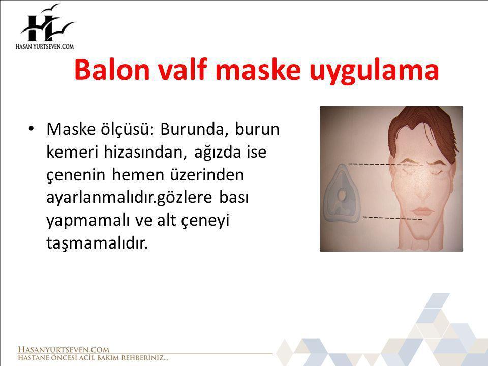 Balon valf maske uygulama
