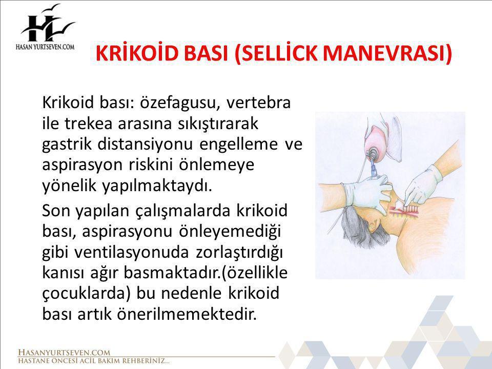 KRİKOİD BASI (SELLİCK MANEVRASI)