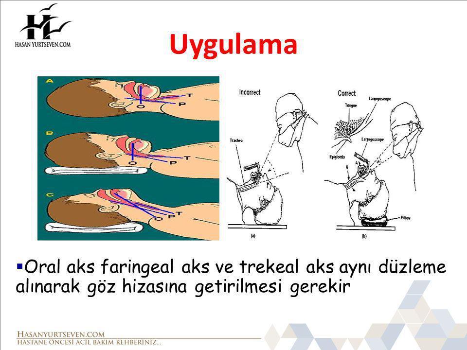 Uygulama Oral aks faringeal aks ve trekeal aks aynı düzleme alınarak göz hizasına getirilmesi gerekir.