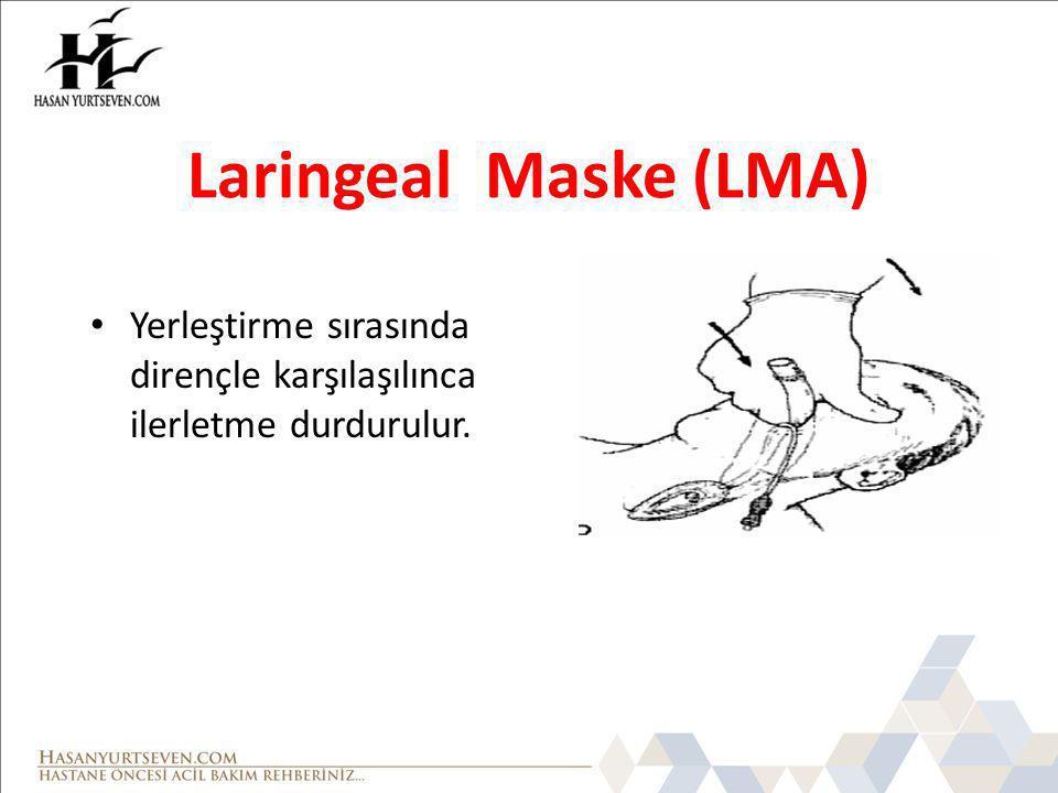 Laringeal Maske (LMA) Yerleştirme sırasında dirençle karşılaşılınca ilerletme durdurulur.
