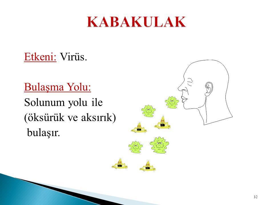 KABAKULAK Etkeni: Virüs. Bulaşma Yolu: Solunum yolu ile