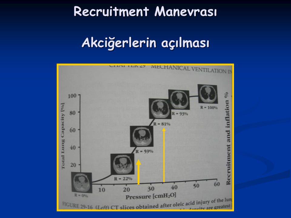 Recruitment Manevrası Akciğerlerin açılması