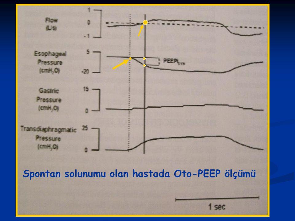 Spontan solunumu olan hastada Oto-PEEP ölçümü