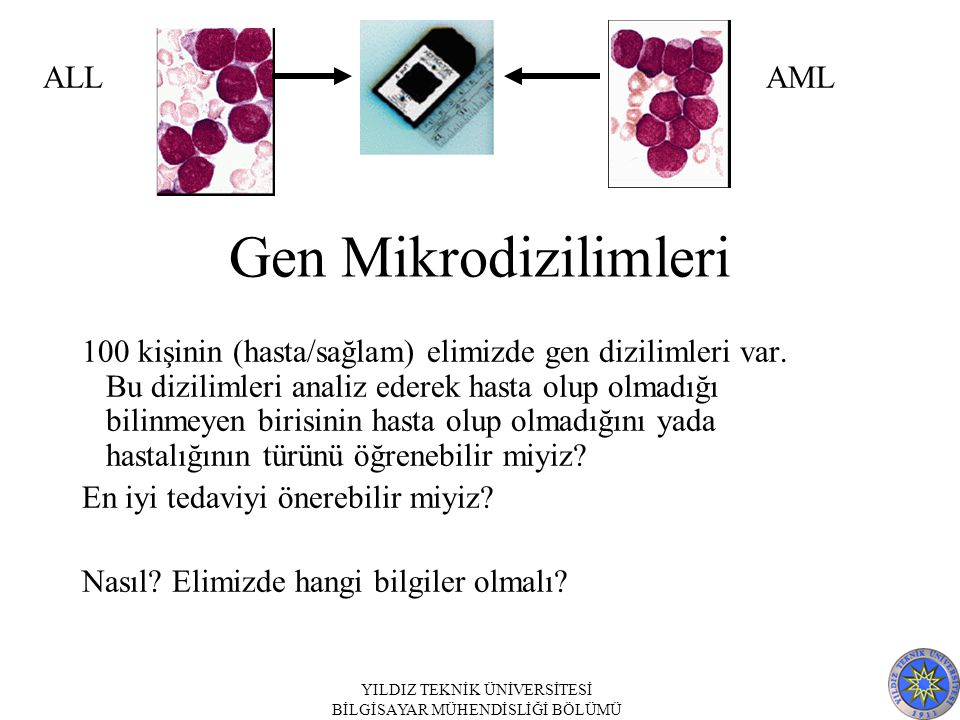 Gen Mikrodizilimleri ALL AML