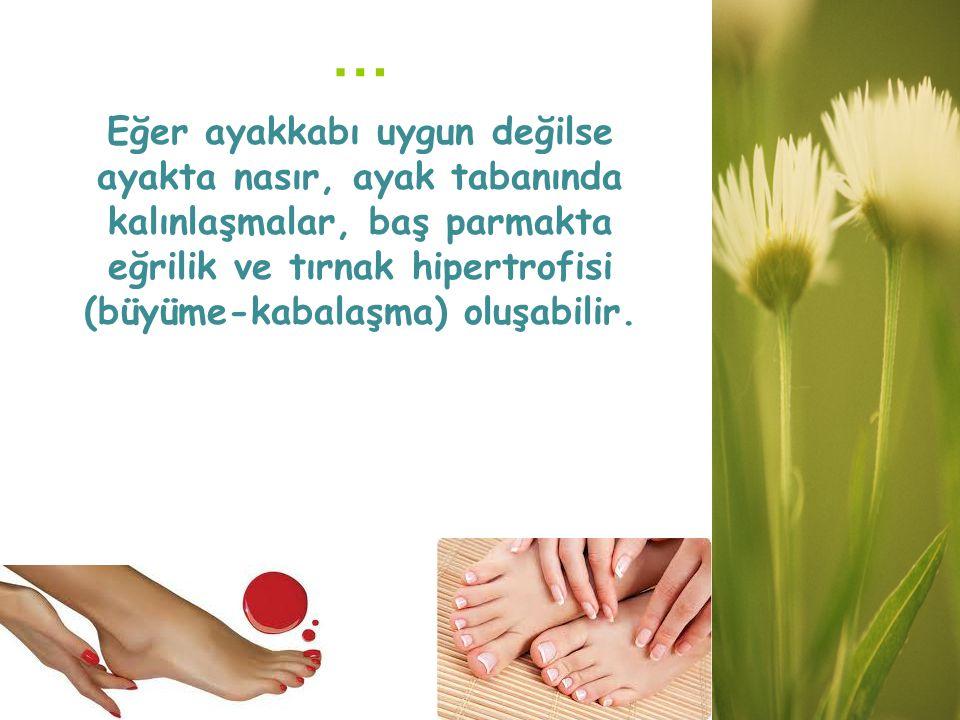 … Eğer ayakkabı uygun değilse ayakta nasır, ayak tabanında kalınlaşmalar, baş parmakta eğrilik ve tırnak hipertrofisi (büyüme-kabalaşma) oluşabilir.