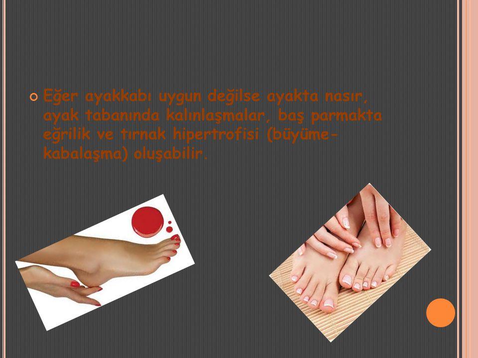 Eğer ayakkabı uygun değilse ayakta nasır, ayak tabanında kalınlaşmalar, baş parmakta eğrilik ve tırnak hipertrofisi (büyüme- kabalaşma) oluşabilir.