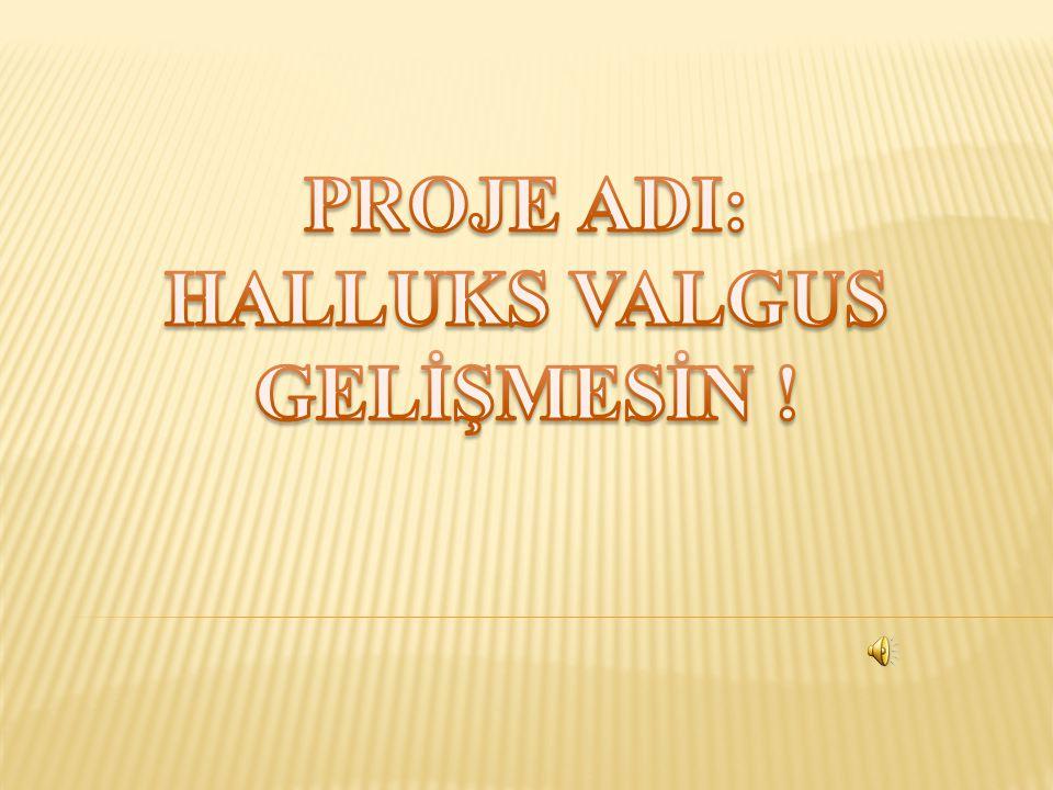 PROJE ADI: HALLUKS VALGUS GELİŞMESİN !