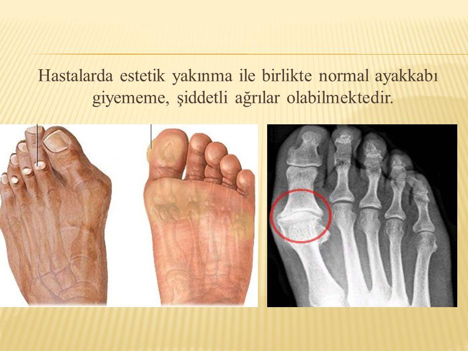 Hastalarda estetik yakınma ile birlikte normal ayakkabı giyememe, şiddetli ağrılar olabilmektedir.