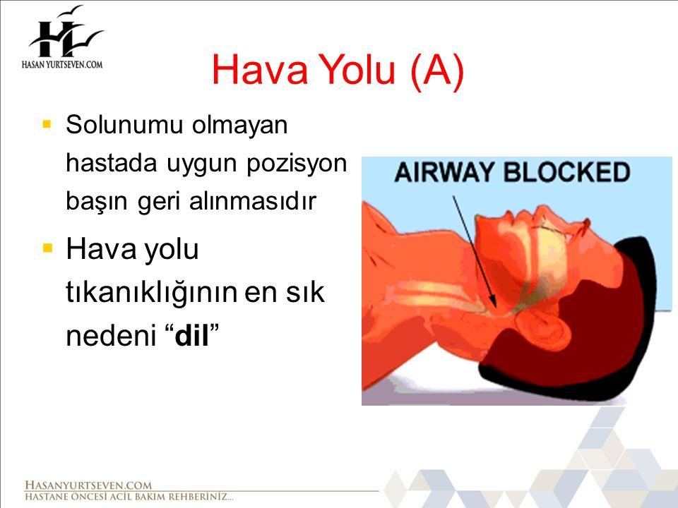 Hava Yolu (A) Hava yolu tıkanıklığının en sık nedeni dil