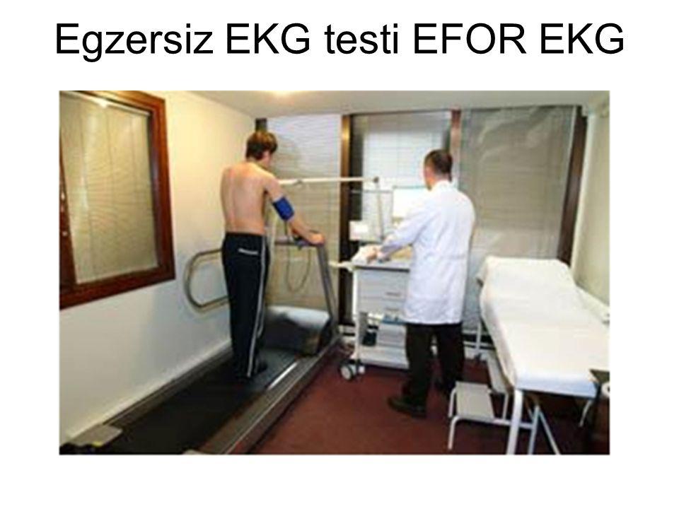 Egzersiz EKG testi EFOR EKG