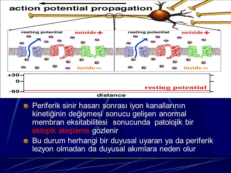 Periferik sinir hasarı sonrası iyon kanallarının kinetiğinin değişmesi sonucu gelişen anormal membran eksitabilitesi sonucunda patolojik bir ektopik ateşleme gözlenir