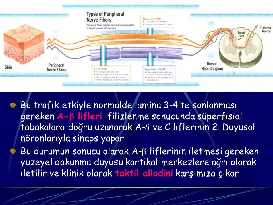 Bu trofik etkiyle normalde lamina 3-4'te sonlanması gereken A- lifleri filizlenme sonucunda süperfisial tabakalara doğru uzanarak A- ve C liflerinin 2. Duyusal nöronlarıyla sinaps yapar