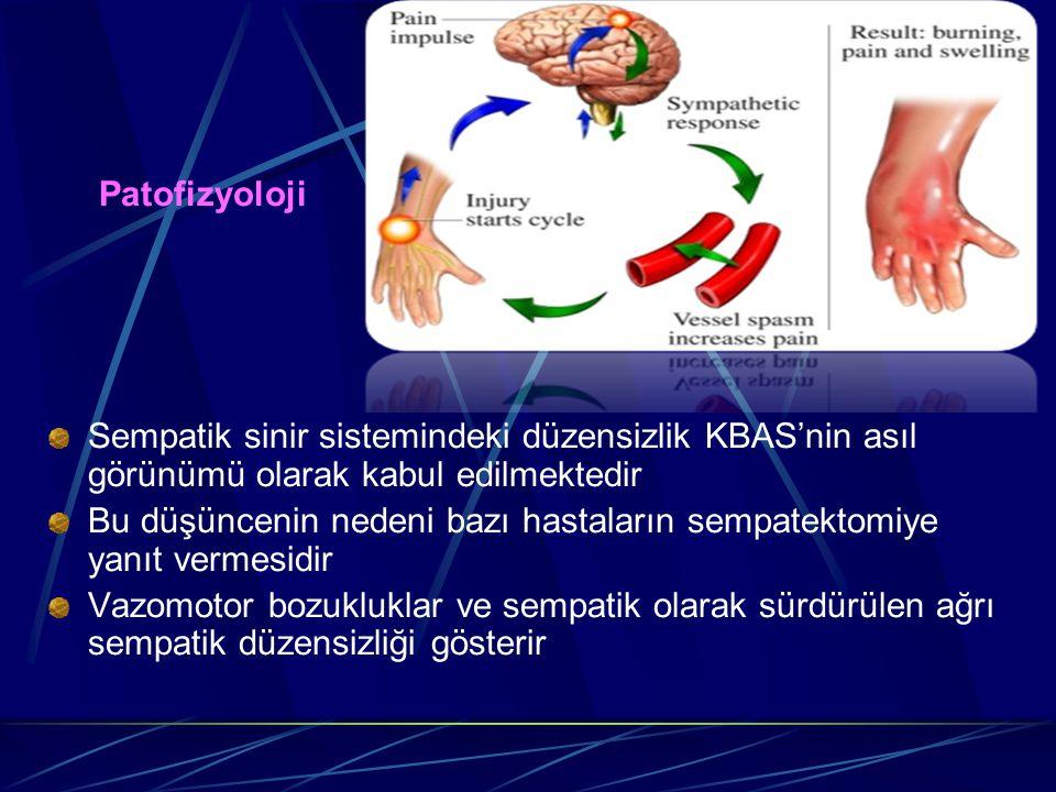 Patofizyoloji Sempatik sinir sistemindeki düzensizlik KBAS'nin asıl görünümü olarak kabul edilmektedir.
