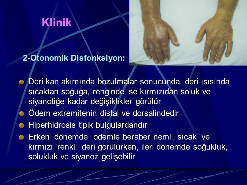 Klinik 2-Otonomik Disfonksiyon:
