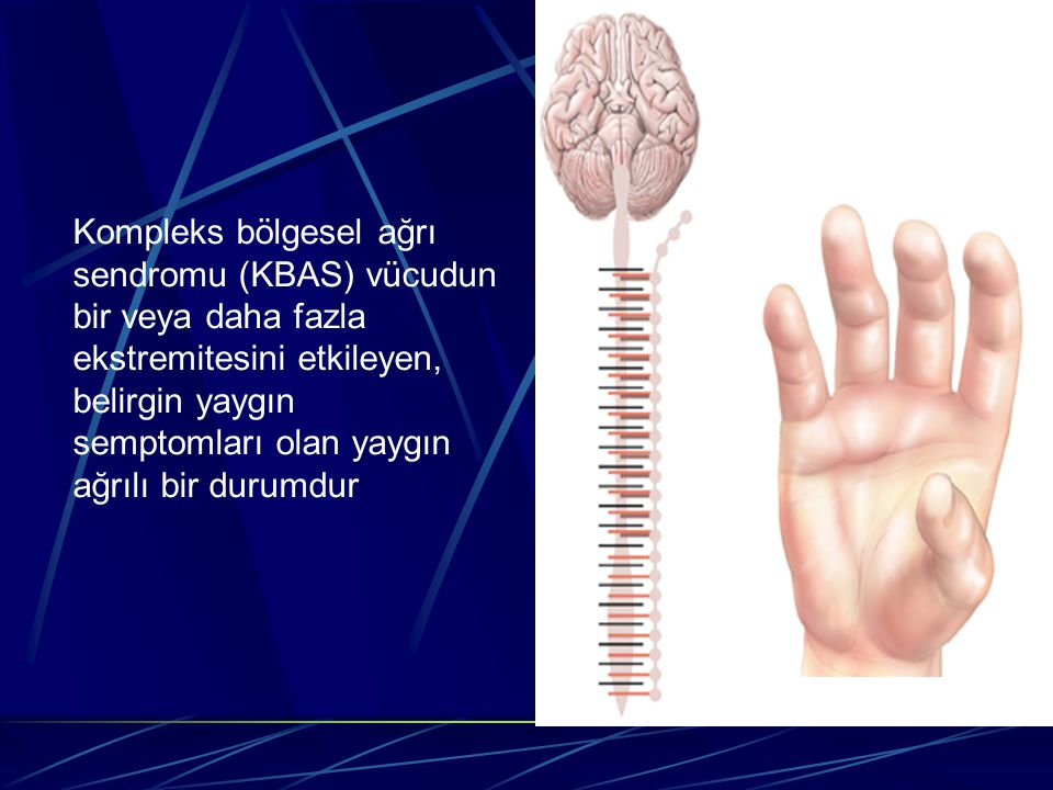 Kompleks bölgesel ağrı sendromu (KBAS) vücudun bir veya daha fazla ekstremitesini etkileyen, belirgin yaygın semptomları olan yaygın ağrılı bir durumdur