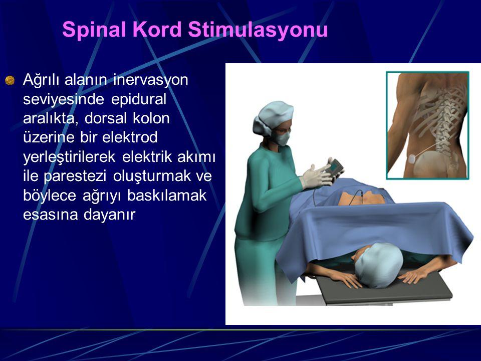 Spinal Kord Stimulasyonu