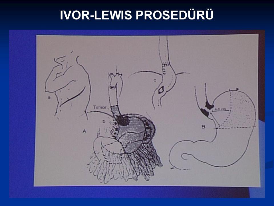 IVOR-LEWIS PROSEDÜRÜ