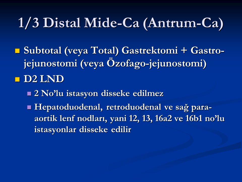 1/3 Distal Mide-Ca (Antrum-Ca)