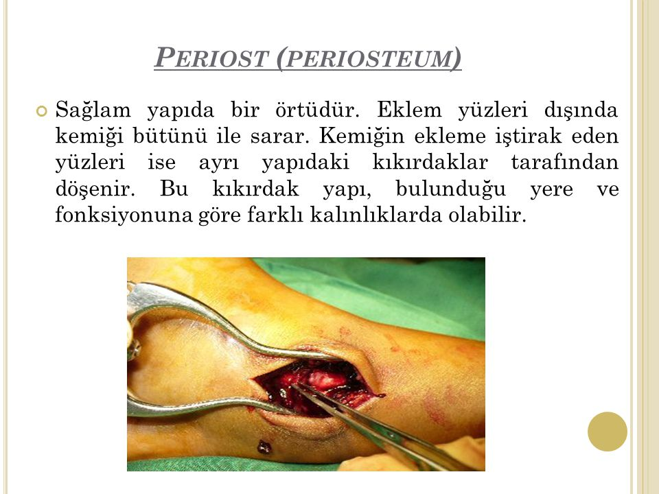 Periost (periosteum)